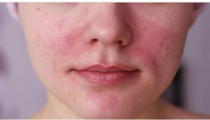 Различные высыпания на коже